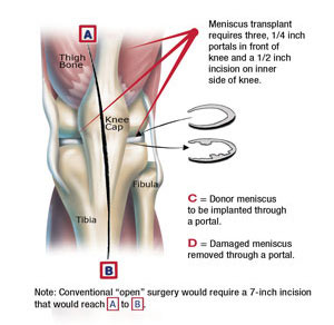 Meniscal Allograft Tampa