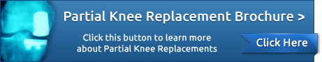 Knee Replacement Surgery Tampa