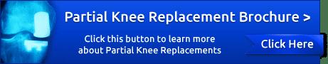 Partial Knee Replacement Brochure
