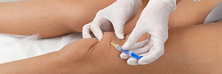 hyaluronate acid injections